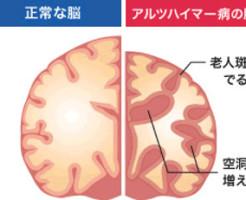 アルツハイマー病発症を血液検査で予見