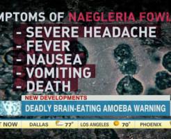 9歳少女が脳をむしばむアメーバ「ネグレリア・フォーレリ」で死亡、米カンザス州